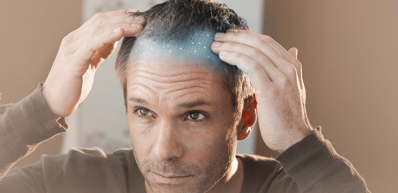 Saç Dökülmesinde ve Saç Ekiminde Hücresel Tedavi Dönemi